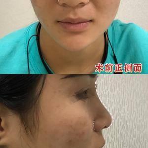 玻尿酸or肋骨鼻,拔草or种草?